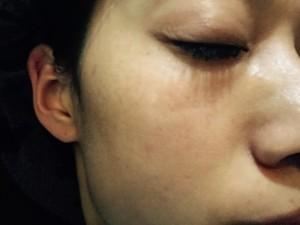 夜の洗顔でほぼ全て黒くなった施術箇所は排出される